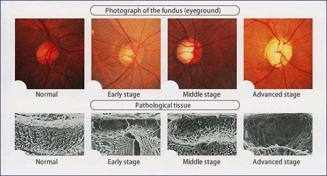 Degradation of the optic disc
